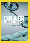 National Geographic - Brain Surgery Live