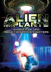 Alien Implants: Evidence Of UFO Abductions And